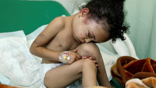 Yemen'de 17 bin savaş ihlali!